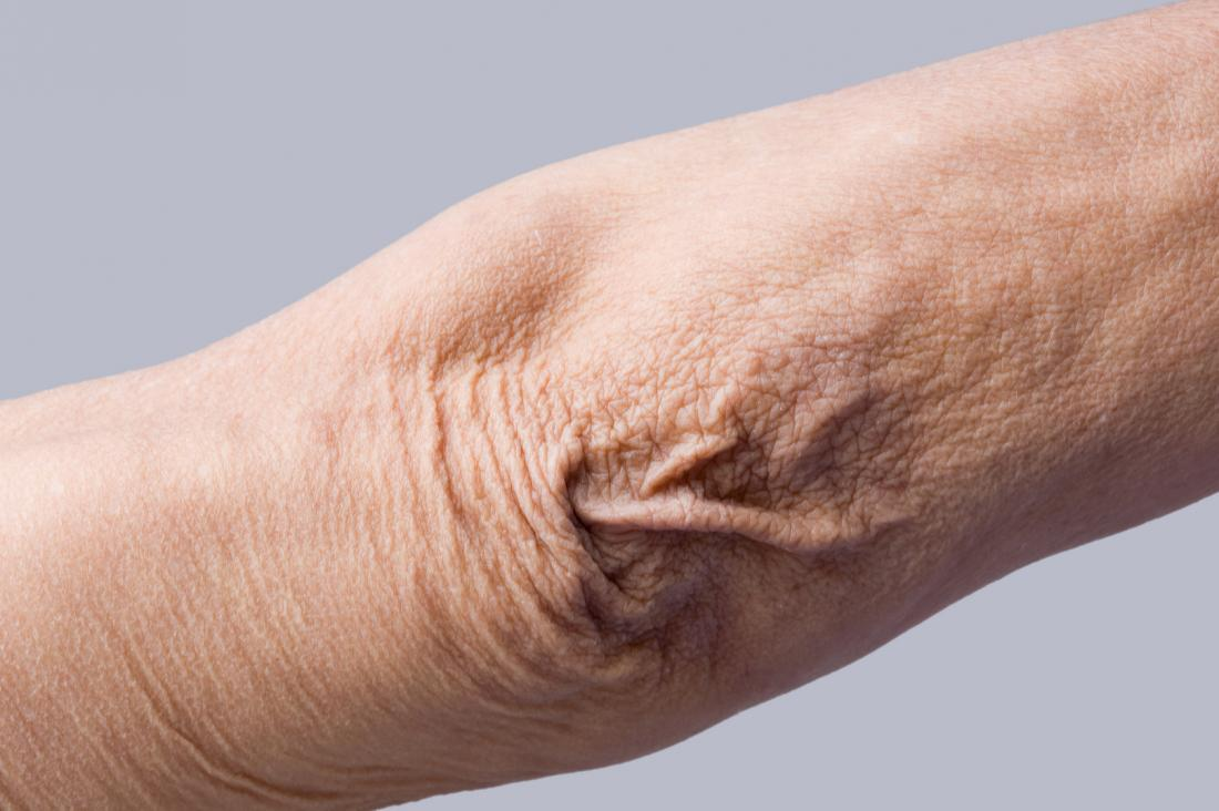 Crepey skin causing thin and wrinkled skin on elbow.