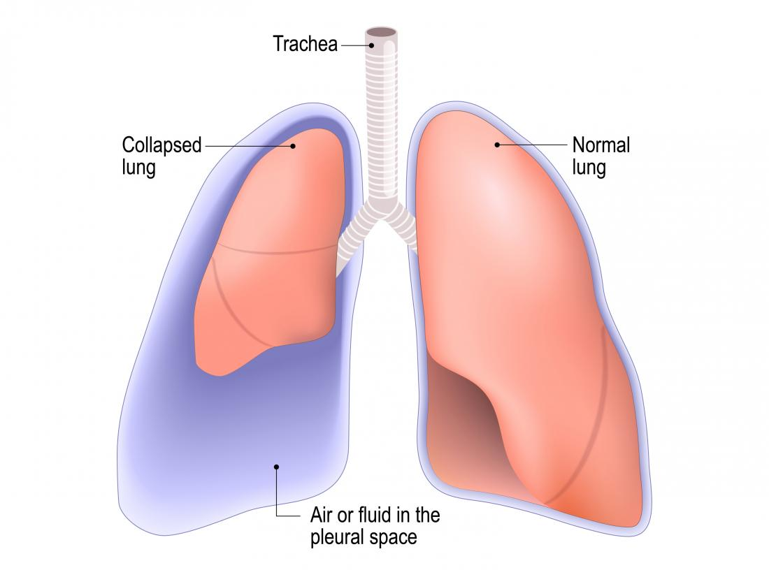 Diagram of a collapsed lung which may be caused by a punctured lung