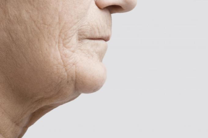 jowls: exercises, causes, treatment, and prevention