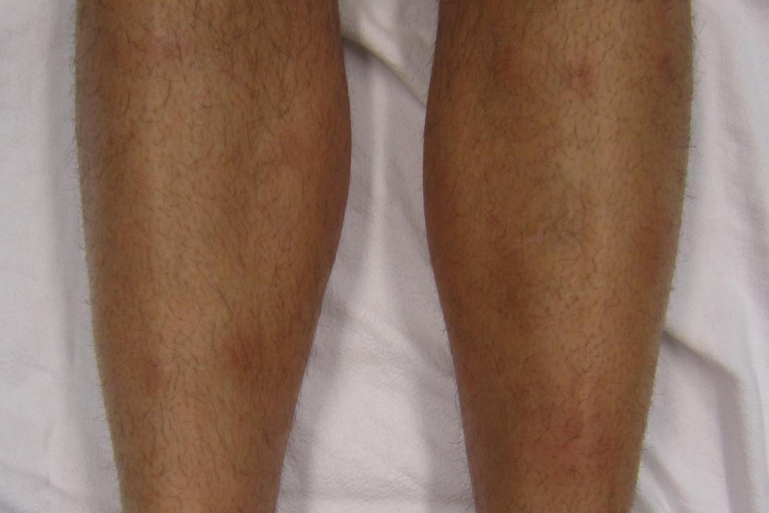 "Erythema nodosum on the shins <br>Image credit: James Heilman, MD, 2012</br>"" /><br><em>Erythema nodosum may be caused by an infection or medication. <br>Image credit: James Heilman, MD, 2010</em></div> <p><a href="