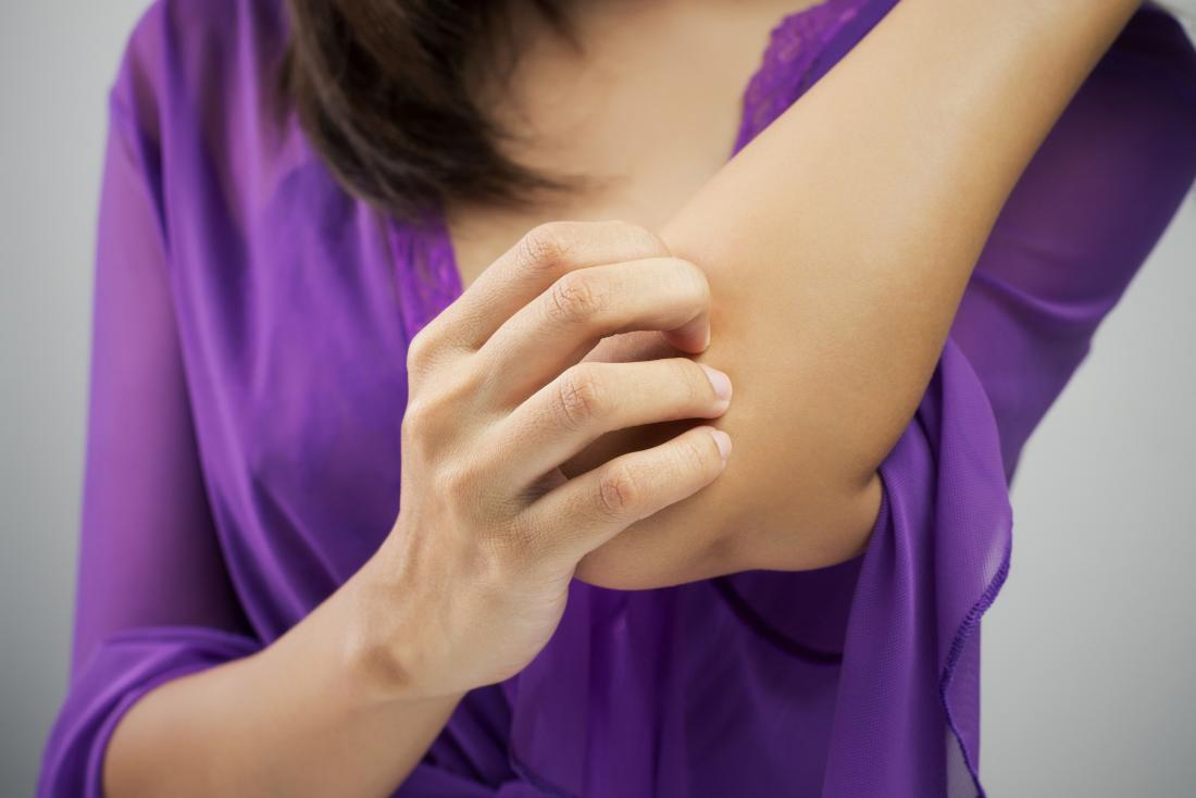 Lady itching her elbow who may be have spongiotic dermatitis