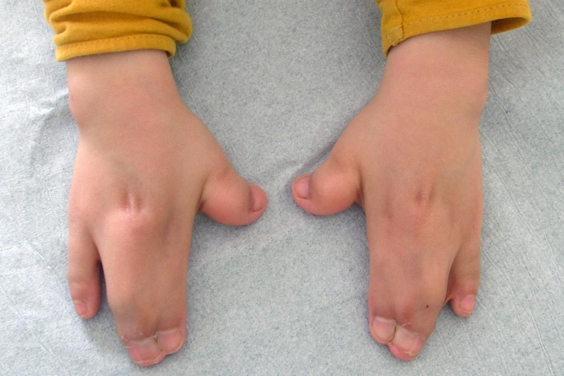 Apert syndrome causing syndactyly or fusing of the fingers in hand. Image credit: Gzzz, (2016, January 14.)