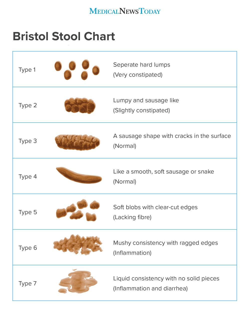 Chicken Poop Chart : chicken, chart, Types, Poop:, Appearance,, Color,, Normal
