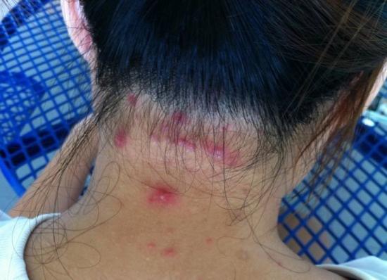 scalp acne treatment causes