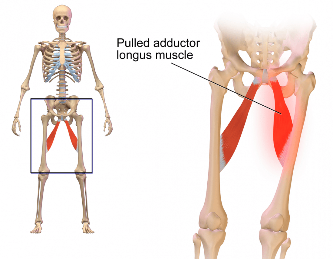 Pulled groin muscle anatomy. Image credit: BruceBlaus, (2015, November 10)