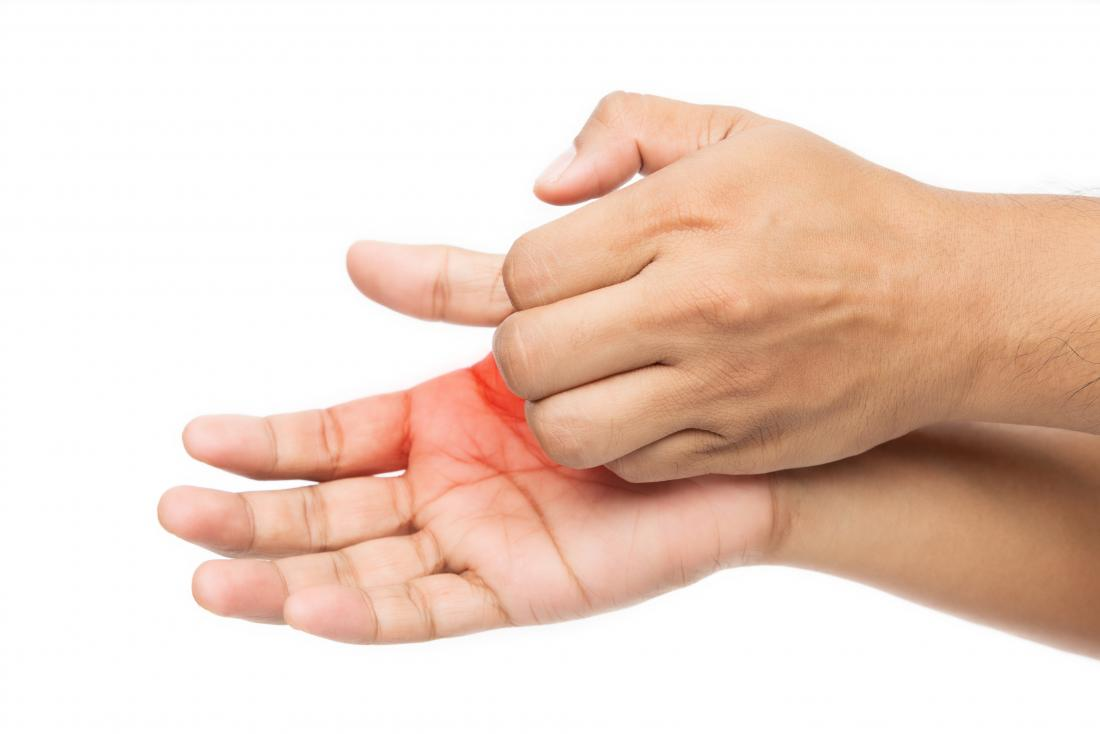Itchy Palms 6 Causes Treatment And Prevention
