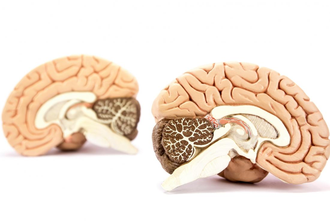 Two sides of the brain, left and ride shown by model of human brain divided into two hemispheres.