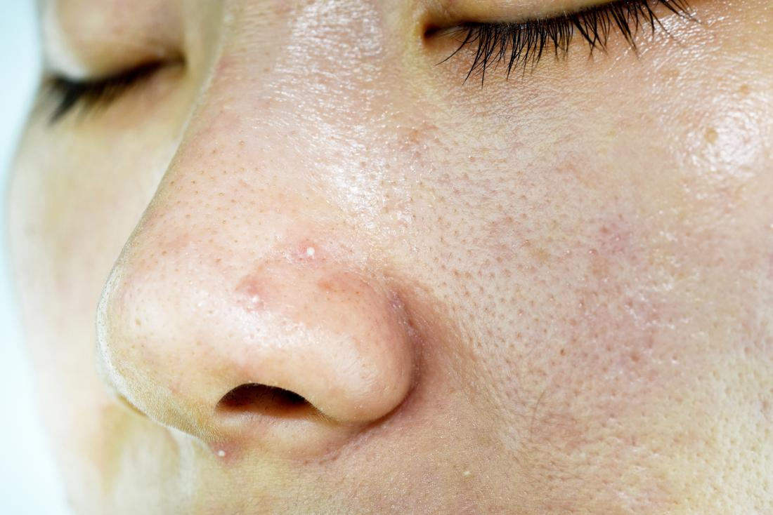 Close up of a womans oily skin