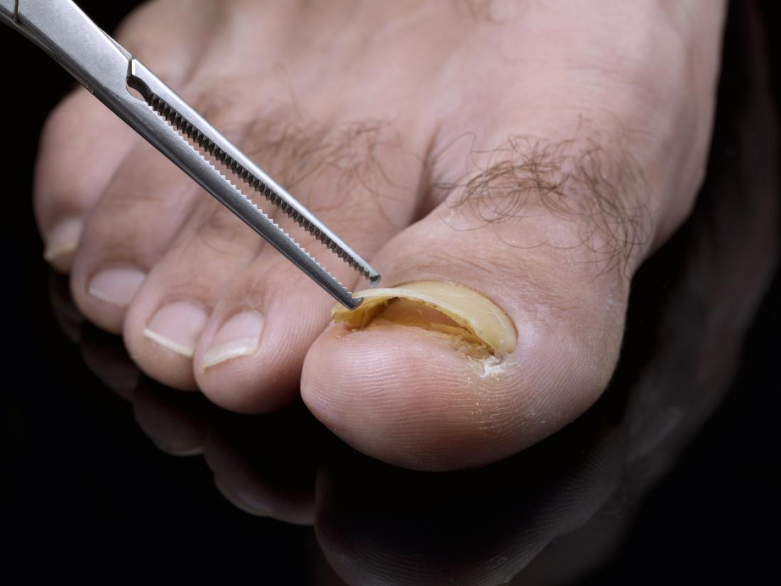 detached toenail