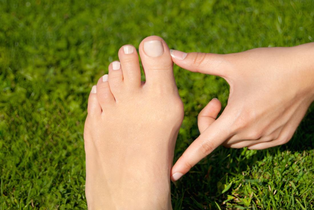 Person pointing out bunion on side of foot outside in front of grass.