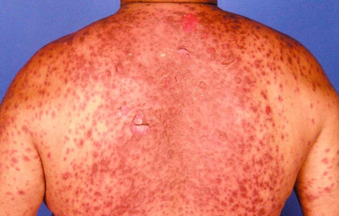 Hautausschlag Durch Virus