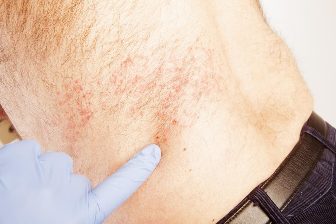 Man with shingles being told what to expect by doctor pointing at rash on his back