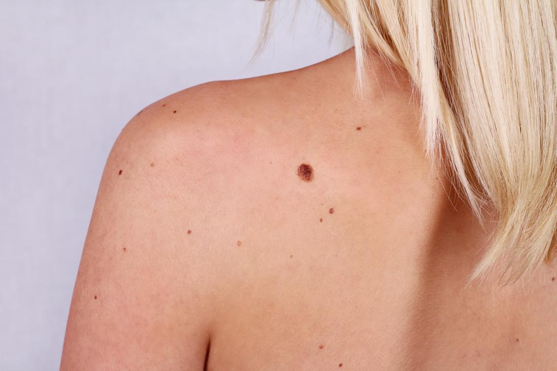 Woman wanting to remove a mole on her back.