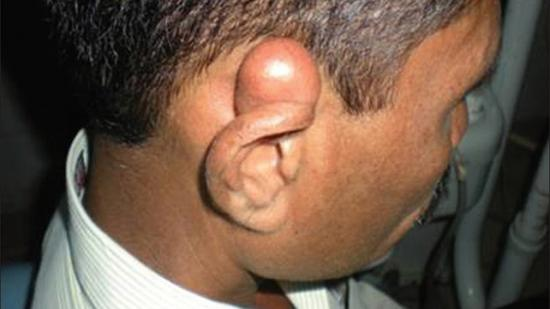 epidermal inclusion cysts behind ear