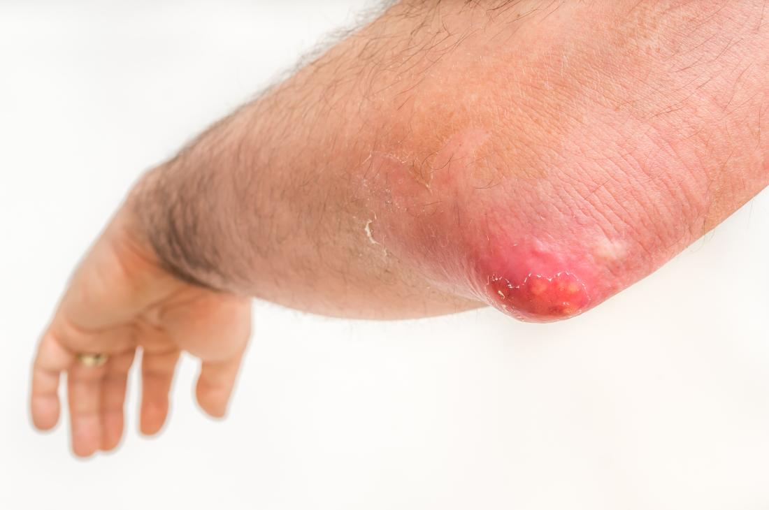 Boil on an elbow