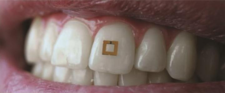 tooth mounted sensor