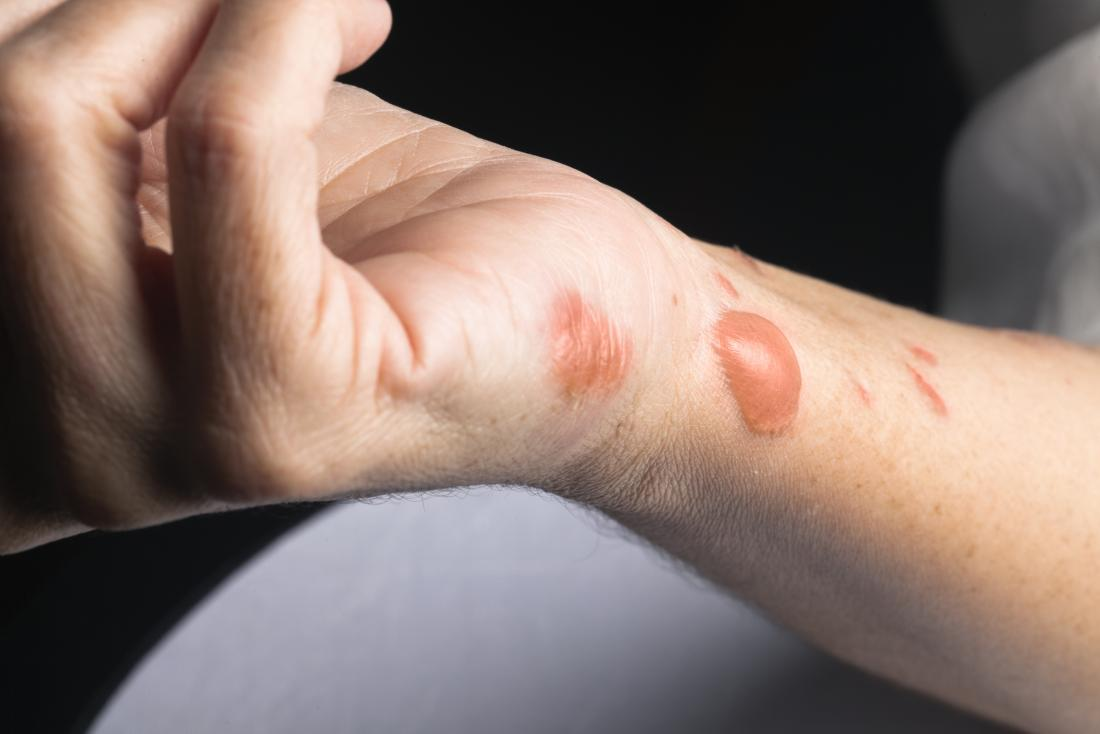 Burn scars on person's wrist and arm, with blisters and scarring.