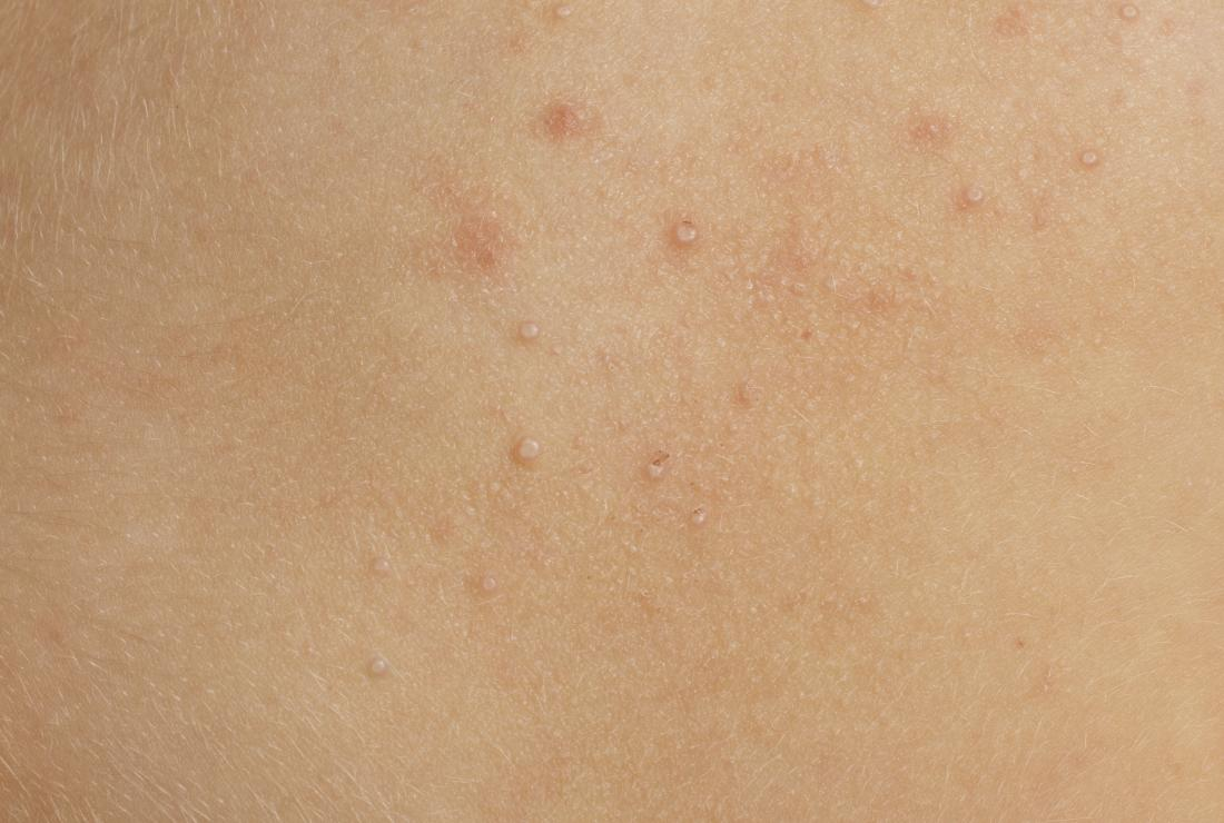Molluscum contagiosum on close-up of skin.