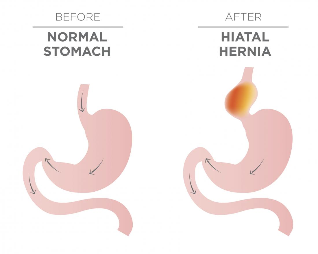 Image showing a normal stomach and hiatal hernia that may require surgery