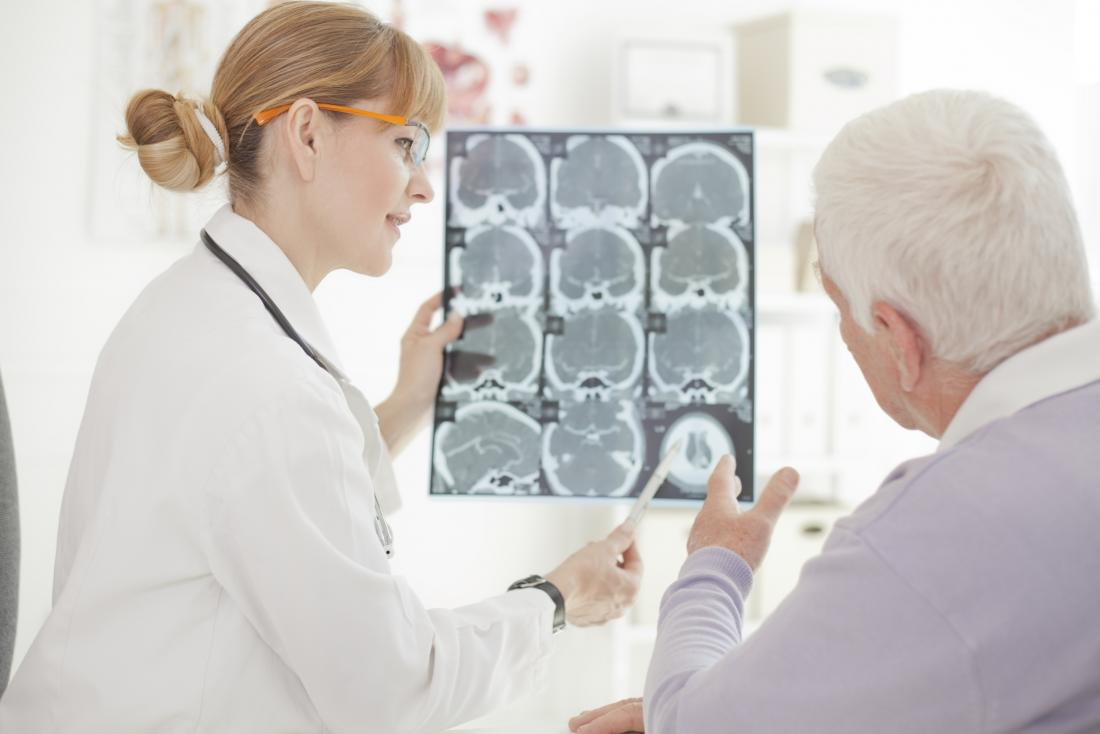 Older adult looking at brain scans