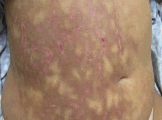 Acute pancreatitis causing mottled skin or Livedo reticularis on abdomen.