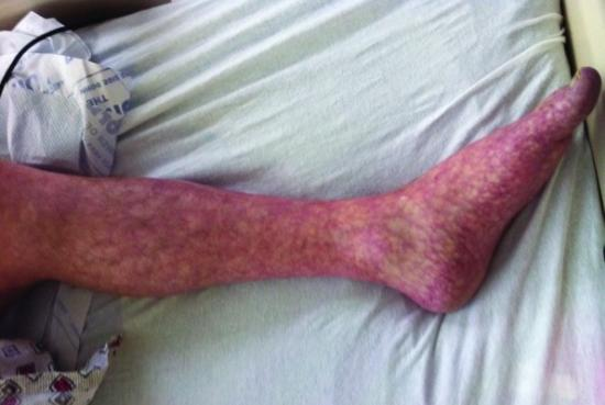 Livedo reticularis commonly affects the skin of the legs.