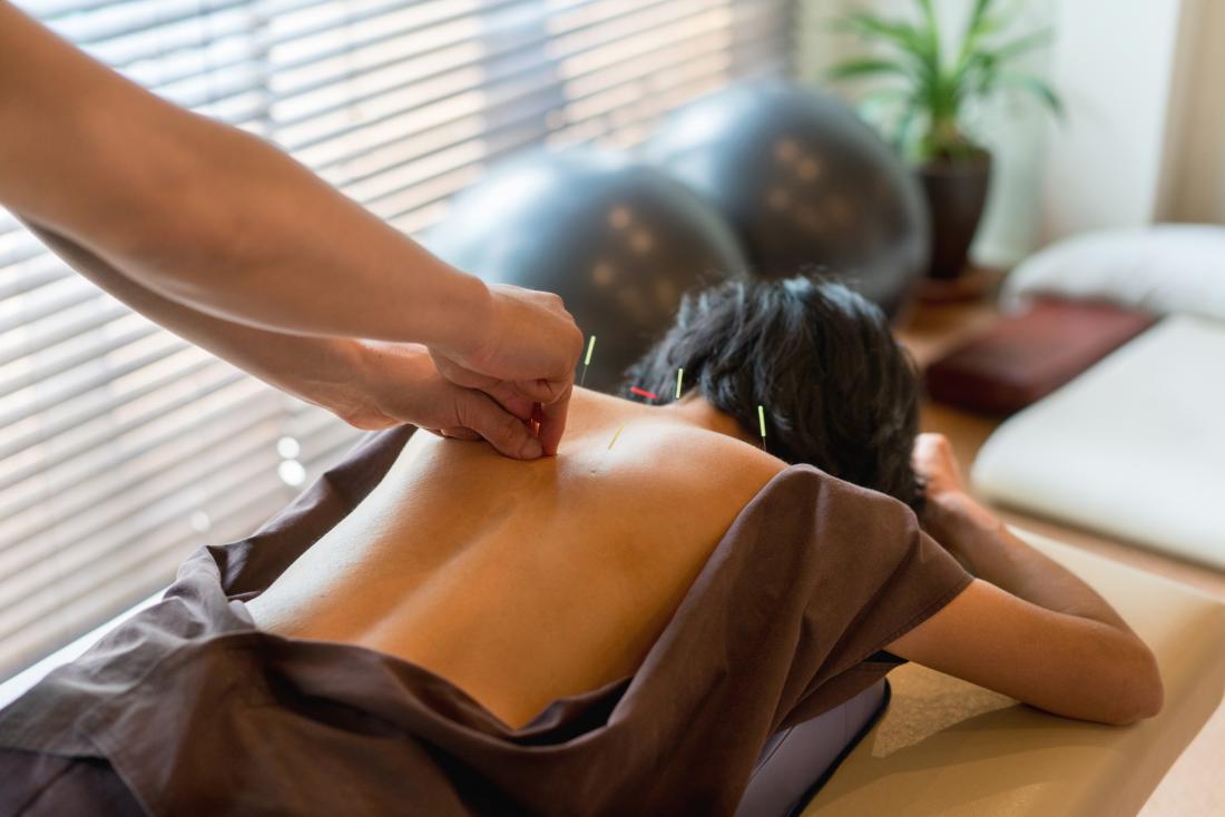 vrouw met acupunctuur