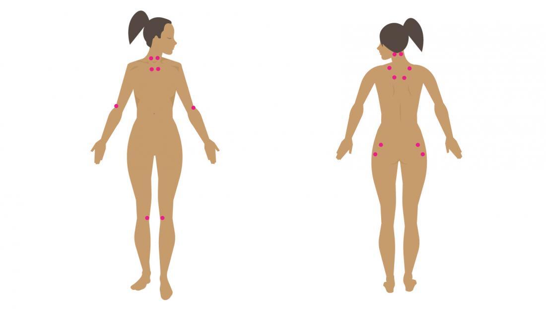 fibromyalgia in women pressure points