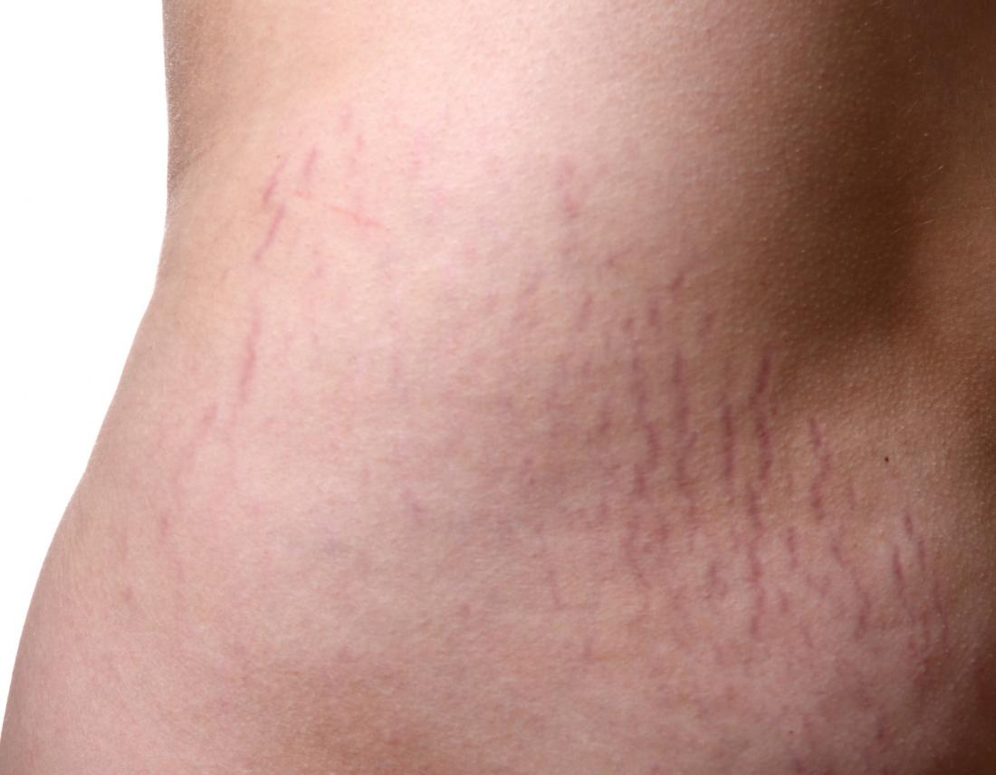 Stretch marks on the skin that may benefit from essential oils