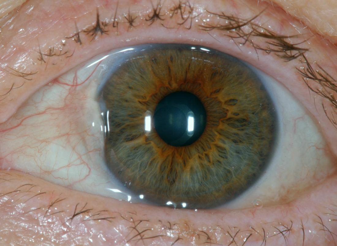 pterygium is a cause of a bump on the eyeball br image credit sciencia58 2017