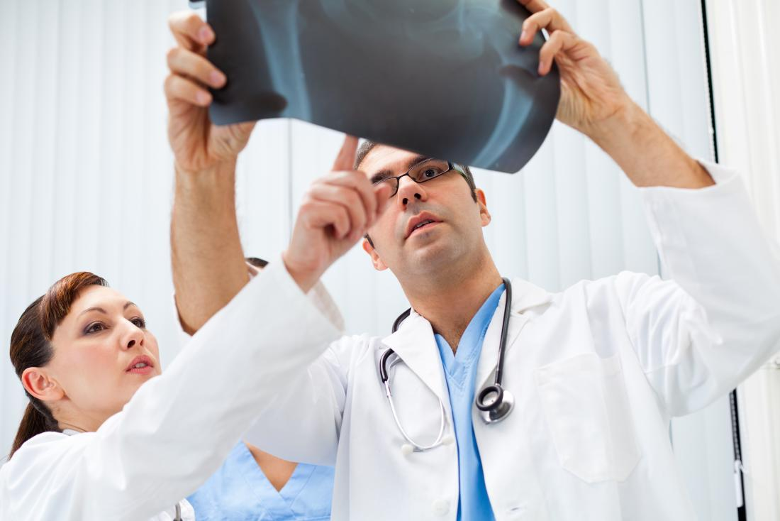 Doctors pointing at x-ray of pelvis.