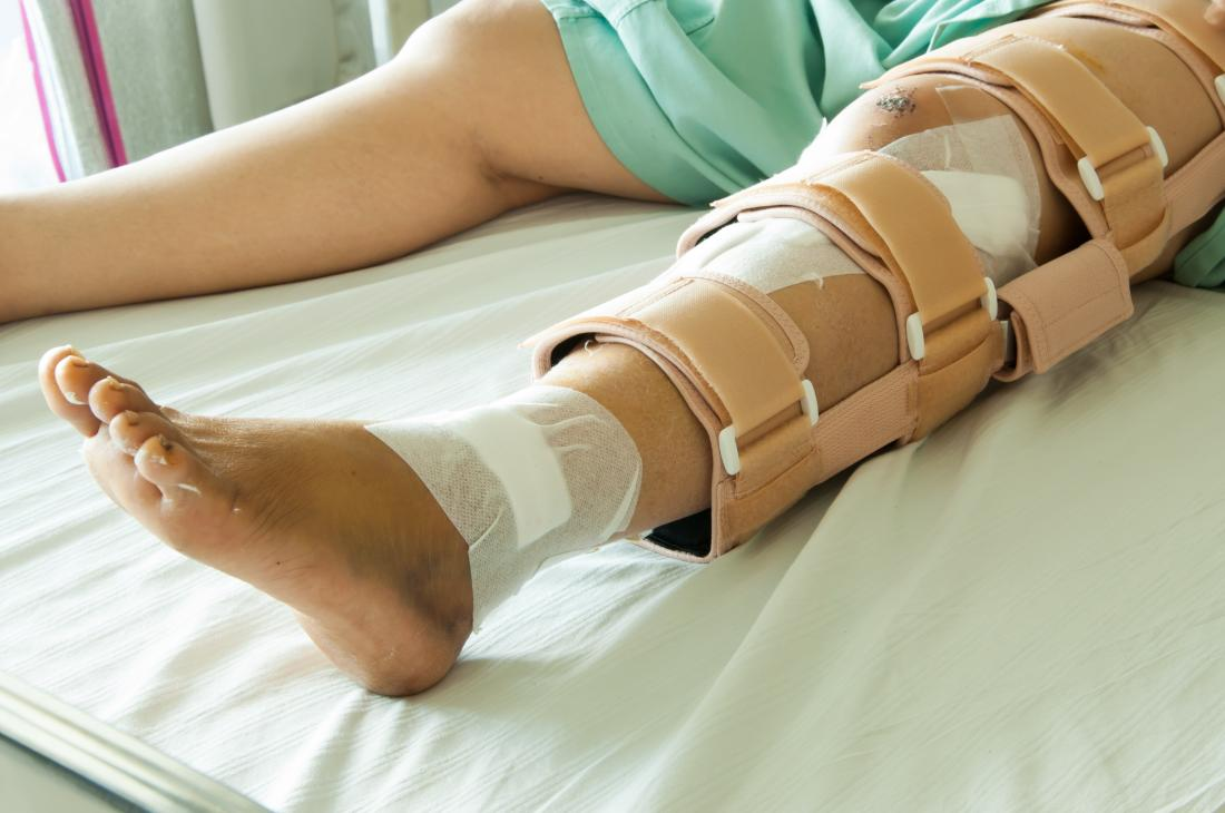 hight resolution of person with broken leg lying on hospital bed with brace and bandages