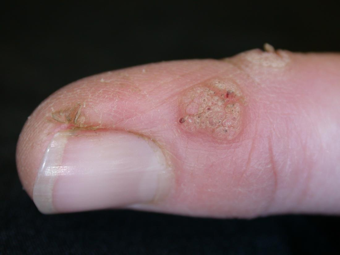 Small warts on hands nhs