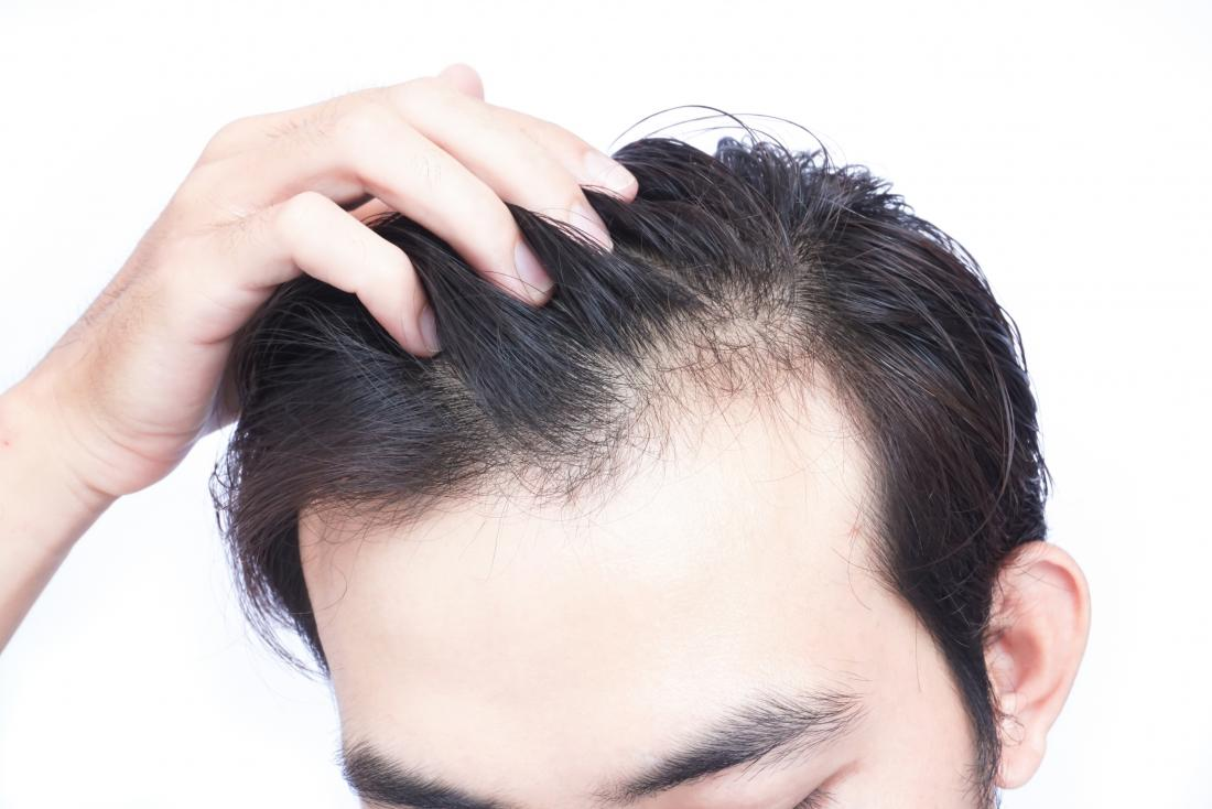 Does vitamin d deficiency lead to hair loss