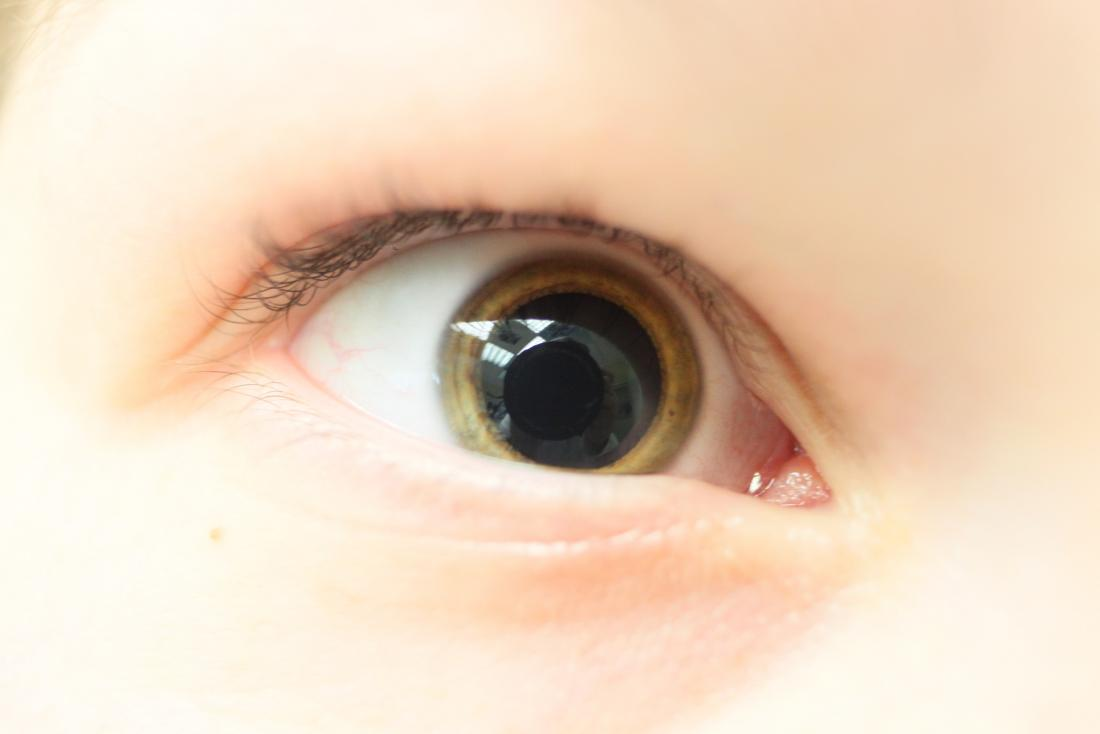Mydriasis: Causes and treatment for dilated pupilsDilated Pupils Drugs Miosis