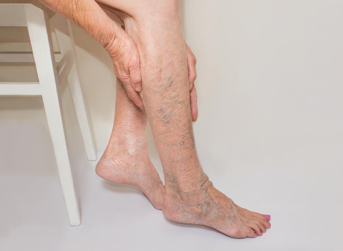 how to treat varicose