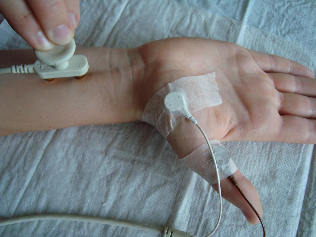 Nerve conduction velocity. Image credit: Kiwi-sonja, (2008, June 6).