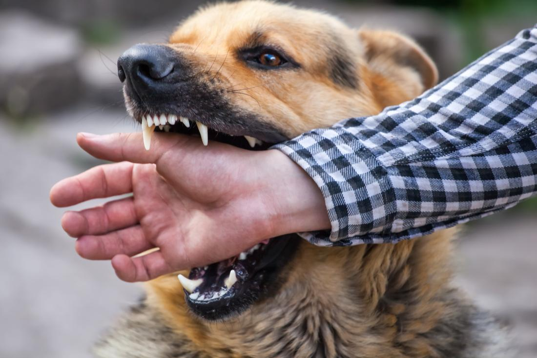 angry dog biting a man