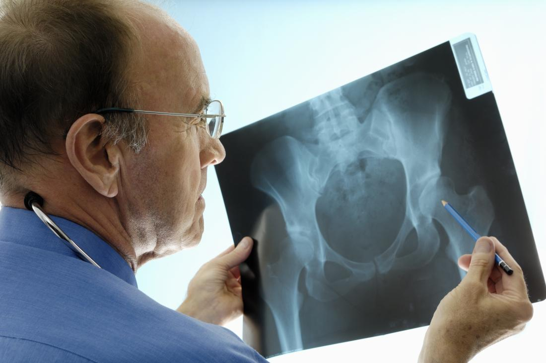 Doctor looking at hip X-ray