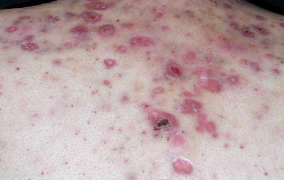Nodular acne on a persons back