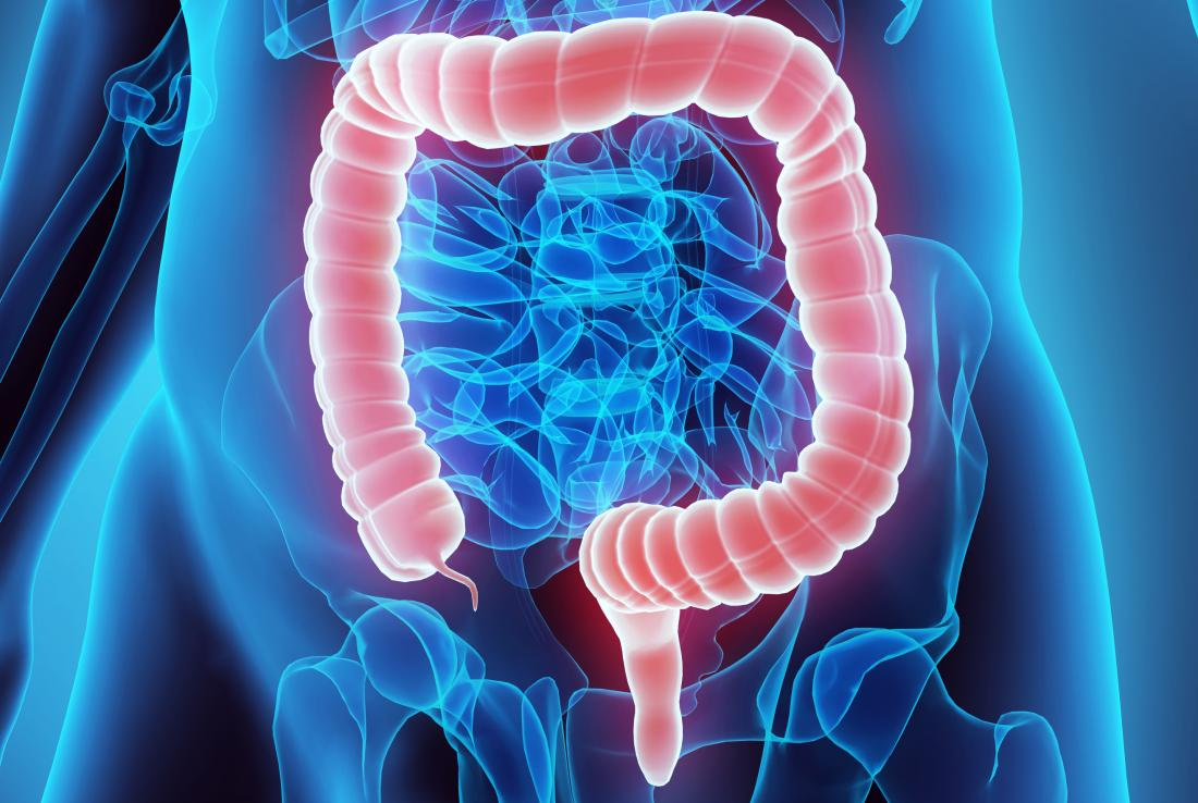 cancer colon bacteria