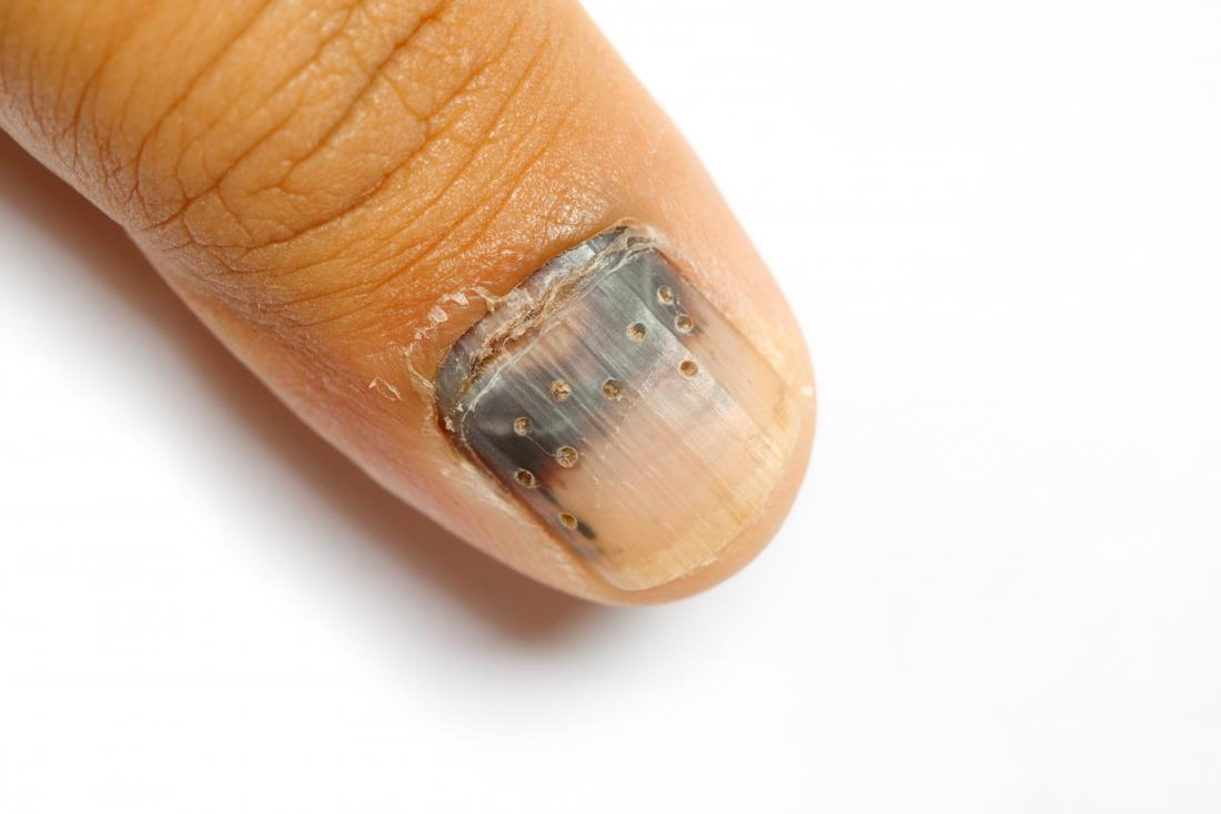 Dents fingernails tiny in What is