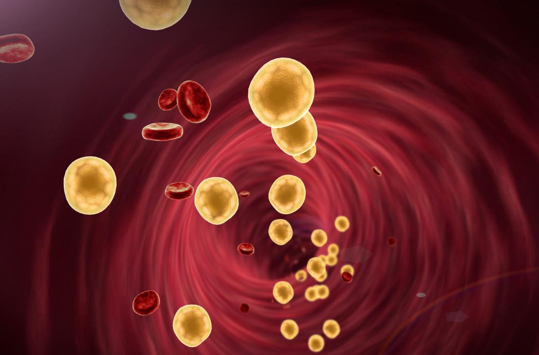 Blood cells and lipid particles in artery to represent dyslipidemia.