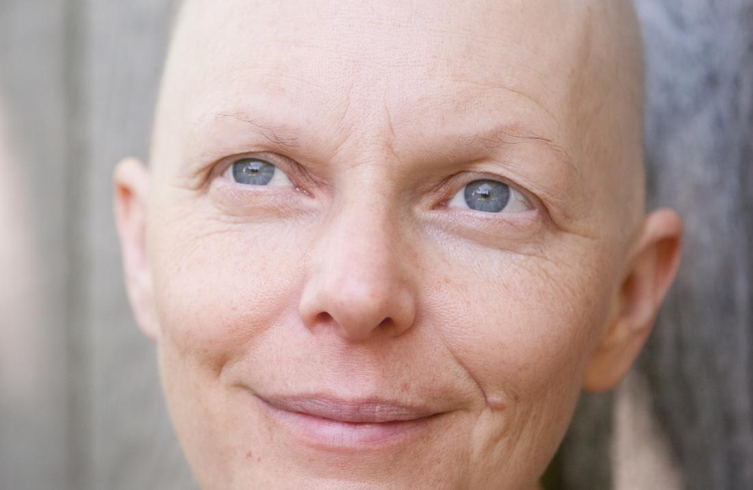 Woman going through chemotherapy treatment