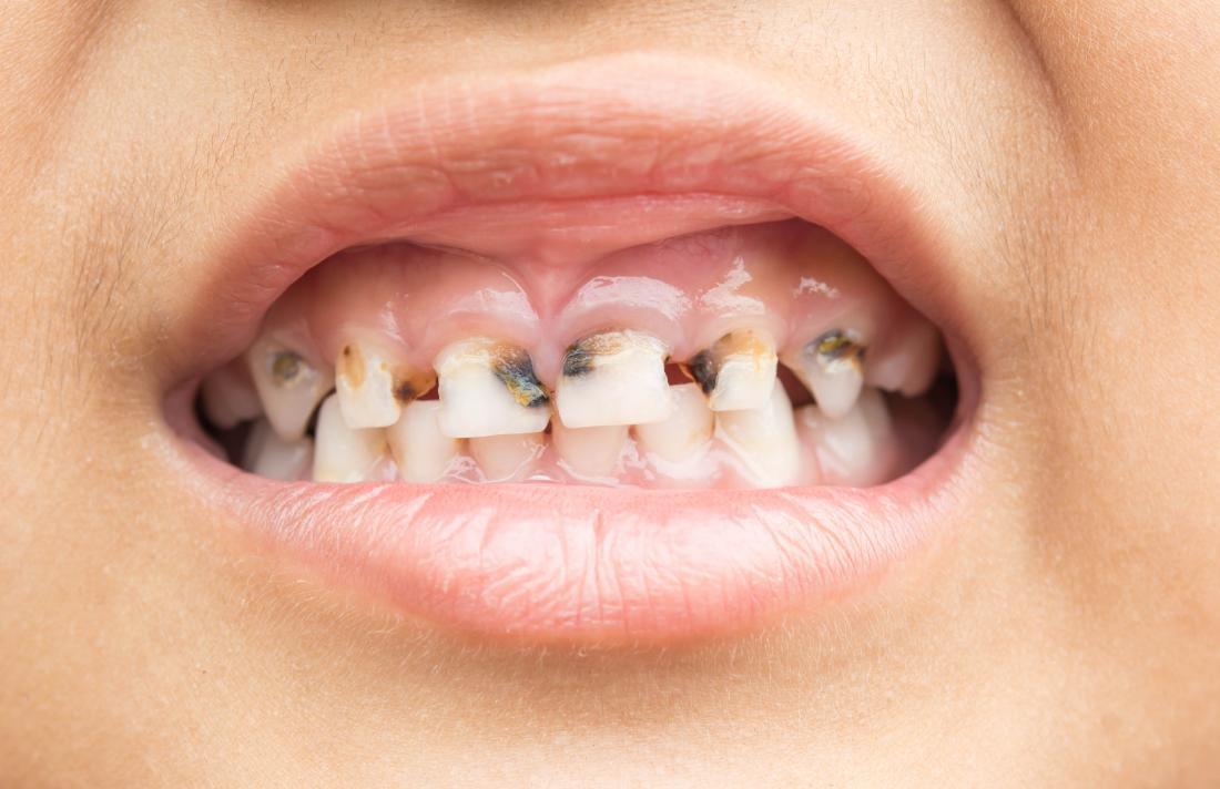Calcium deficiency disease (hypocalcemia): 7 symptoms and ...