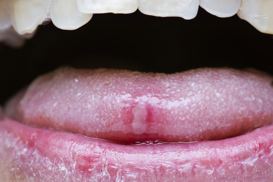 canker sore on the tip of a persons tongue