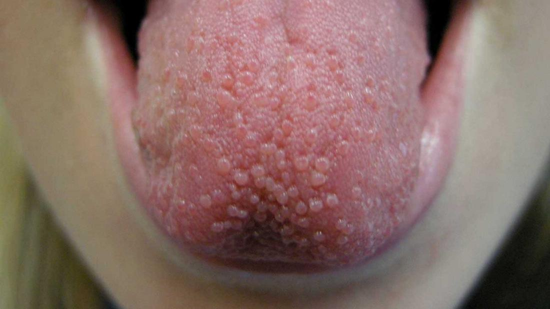 Lie bumps on the tongue