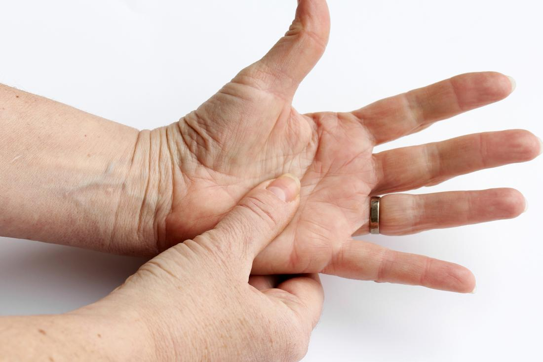 Rheumatoid arthritis or psoriatic arthritis in woman's hand.