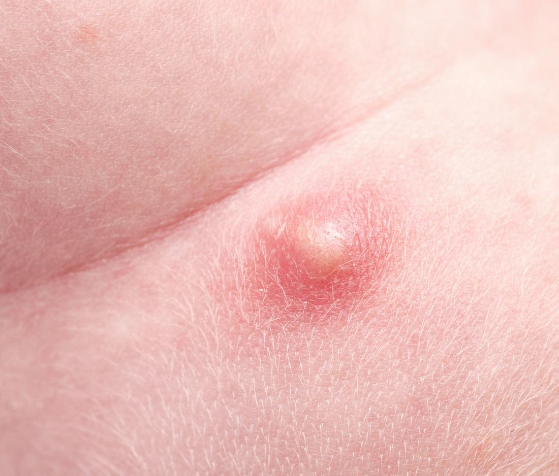 Pimple on scrotum