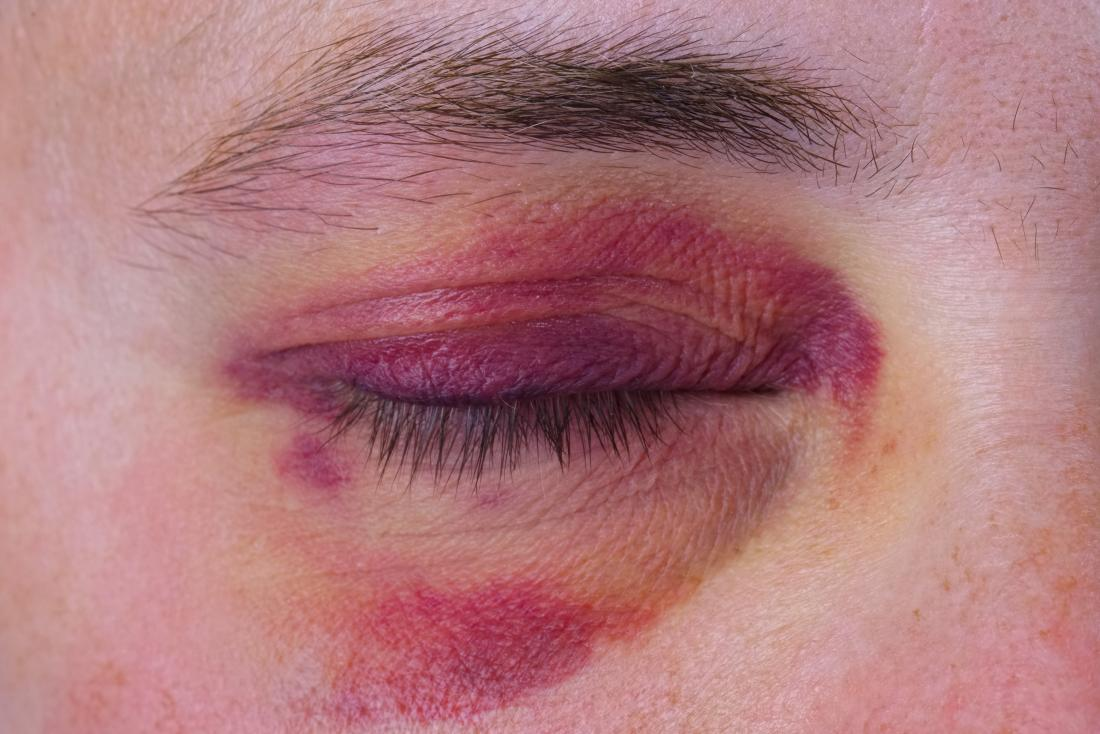 Broken Eye Socket Pictures Causes And Treatment